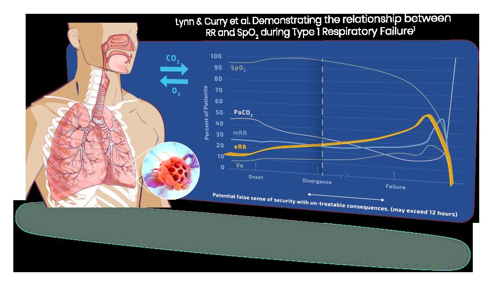 Respiratory Failure  Graphic